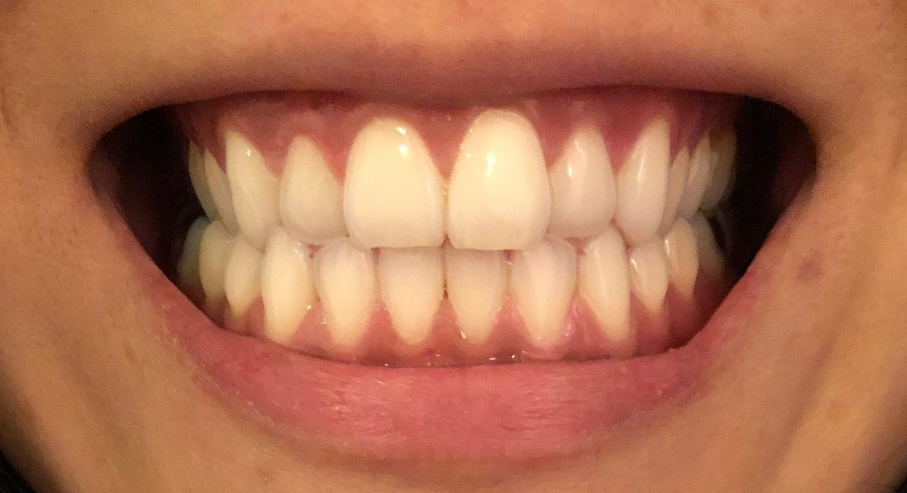 invisalign review before