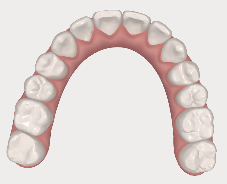 invisalign before and after teeth photos