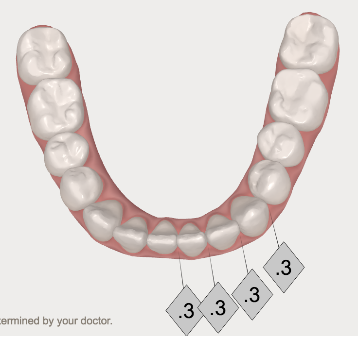clear aligners invisalign before and after teeth photos