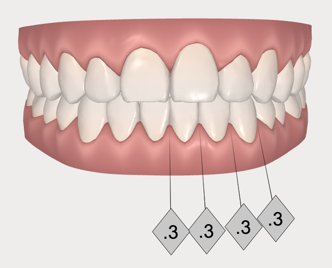 clear aligners invisalign after photo